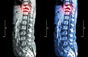 Spine metastasis ( cancer spread to thoracic spine ) ( MRI of th